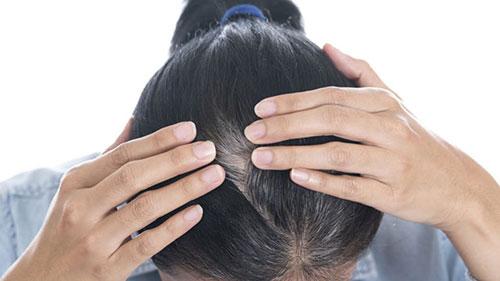 điều trị rụng tóc bạc tóc