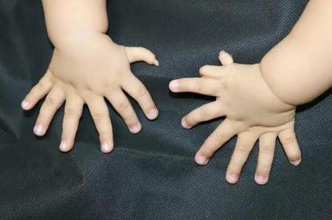 dị tật thừa ngón tay cái