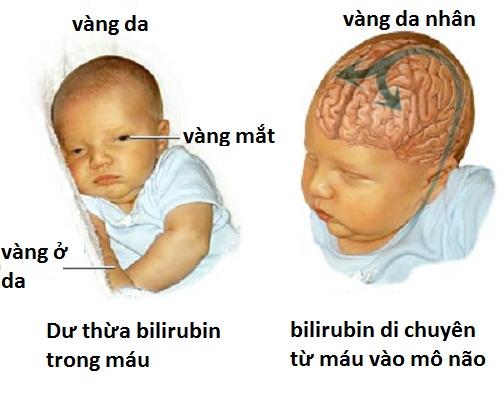 trẻ sơ sinh bị vàng da