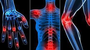 chữa trị xương khớp
