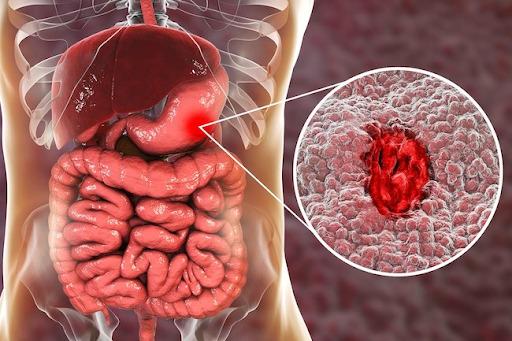 viêm loét dạ dày là gì