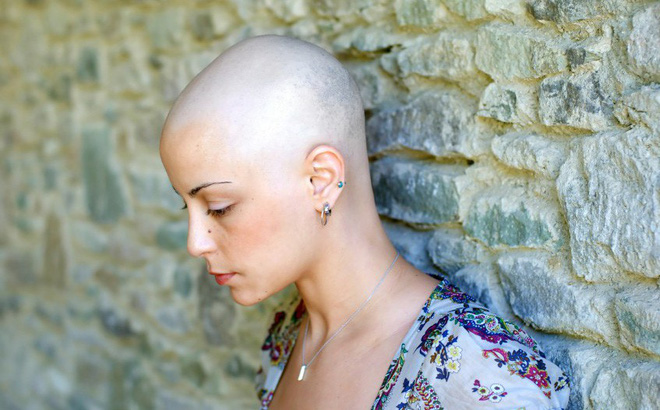 rụng tóc có phải bị ung thư